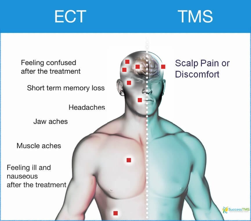 side effect of ECT vs TMS